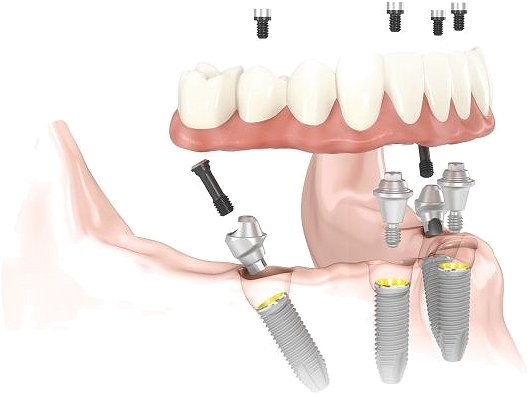 All-On-4 Dental Implants Basingstoke