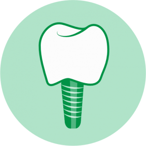 Dental Implants Basingstoke