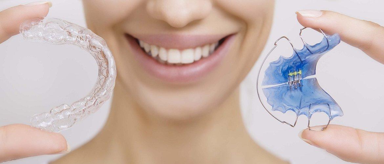 Conventional Teeth Straightening